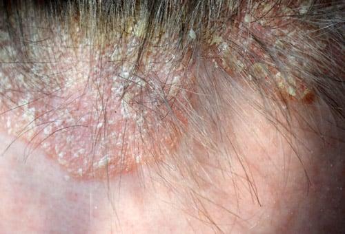 Psoríase de couro cabeludo