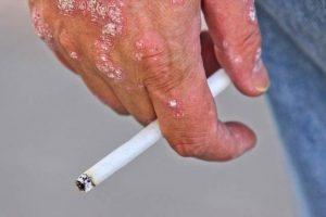Psoríase – Doença autoimune da pele