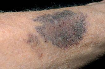 Púrpura trombocitopênica