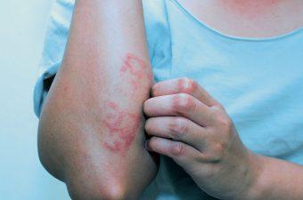 8 Causas de Manchas Rojas en el Cuerpo que Pican