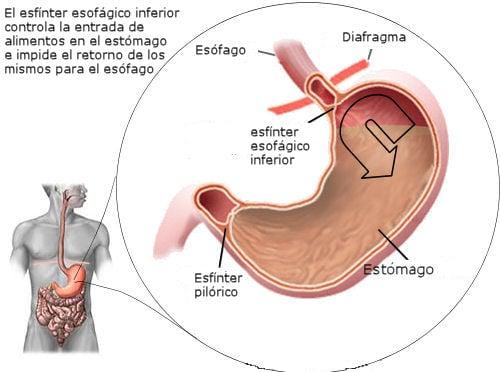 reflujo gastroesofagico