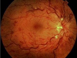 retinopatia hipertensiva