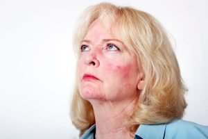 Rosácea (acne rosácea) – Causas, Sintomas e Tratamento