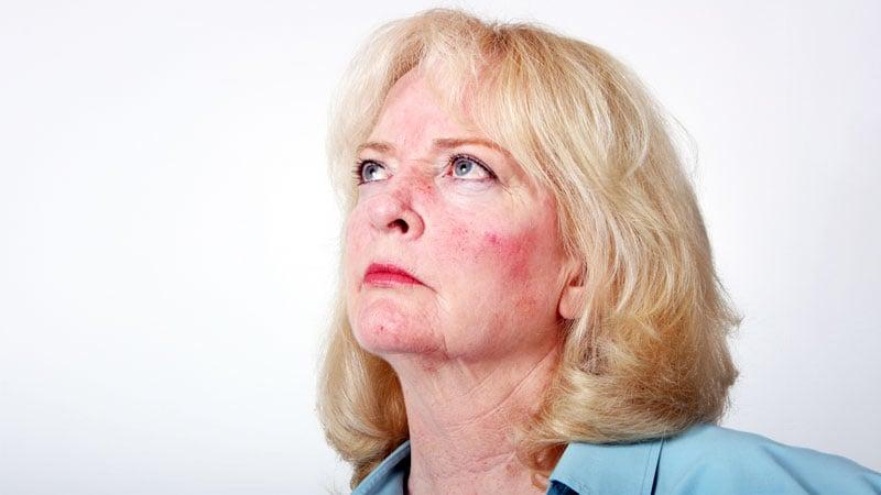 Causas de las rojeces en la cara