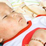 ROSÉOLA – EXANTEMA SÚBITO – Causas, Síntomas y Tratamiento