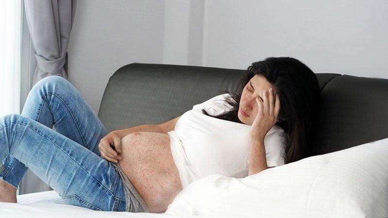 Rubéola na gravidez
