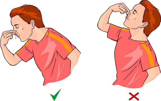 sangramento do nariz