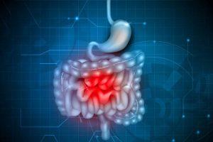 14 Causas de hemorragia digestiva (fezes com sangue ou escuras)