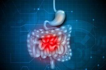 HEMORRAGÍA DIGESTIVA – 14 causas de sangre en las heces y heces oscuras