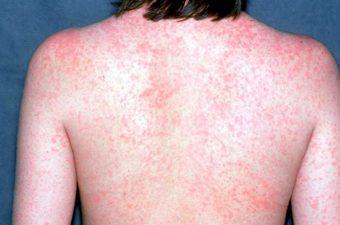 SARAMPO – Sintomas, imagens, transmissão e vacina