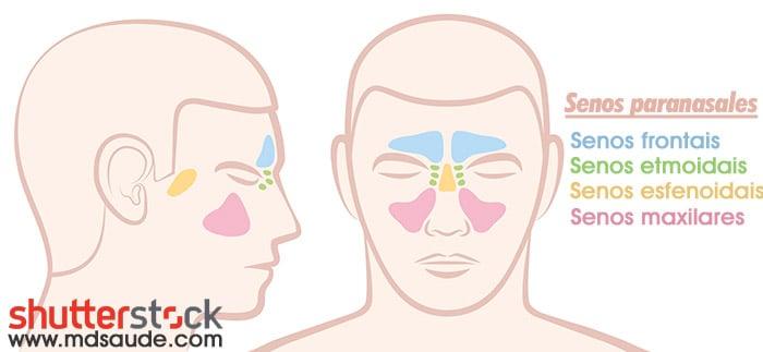 sintomas de sinusitis bacteriana