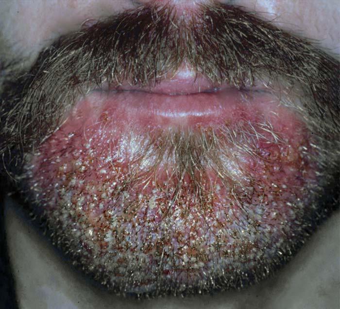 Sicose barba