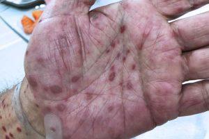 Fotos de Sífilis – Fases Precoce e Avançada