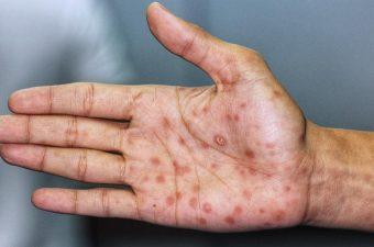 Sífilis na mão