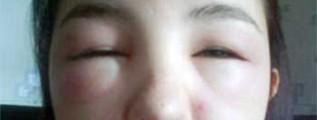 DOENÇA DE LESÃO MÍNIMA – Síndrome Nefrótica Infantil