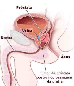 Sintomas-próstata