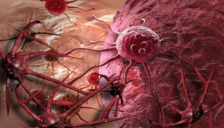 Que tipo de cancer provoca perdida de peso