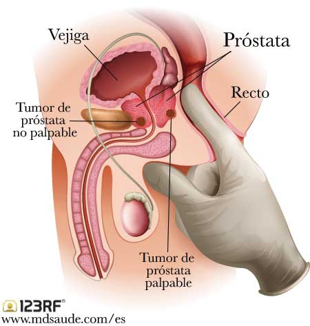 tumor maligno de prostata tratamiento