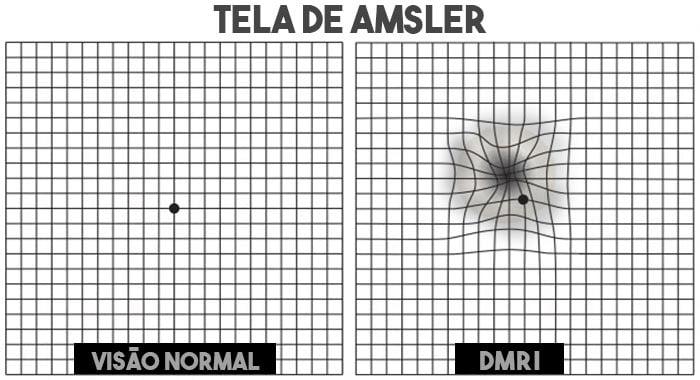 Tela de Amsler - Degeneração macular
