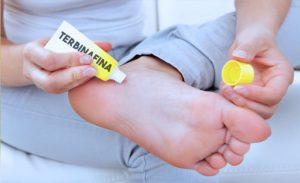 TERBINAFINA – Dosis, Para que Sirve y Efectos Secundarios