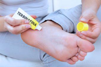TERBINAFINA – Remédio para micoses