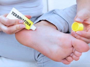 Terbinafina