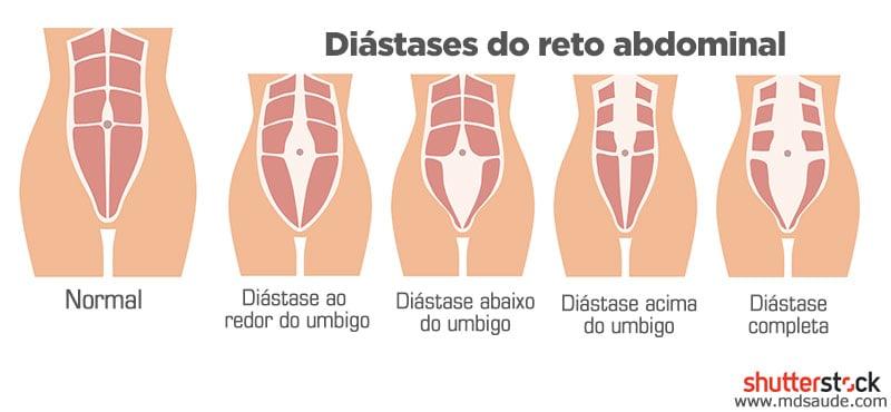 Tipos de diástase abdominal