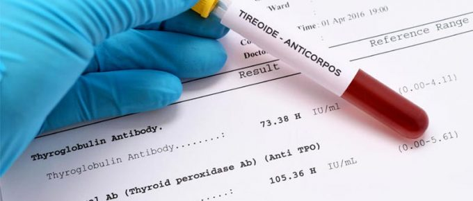 Anticorpos contra tireoide