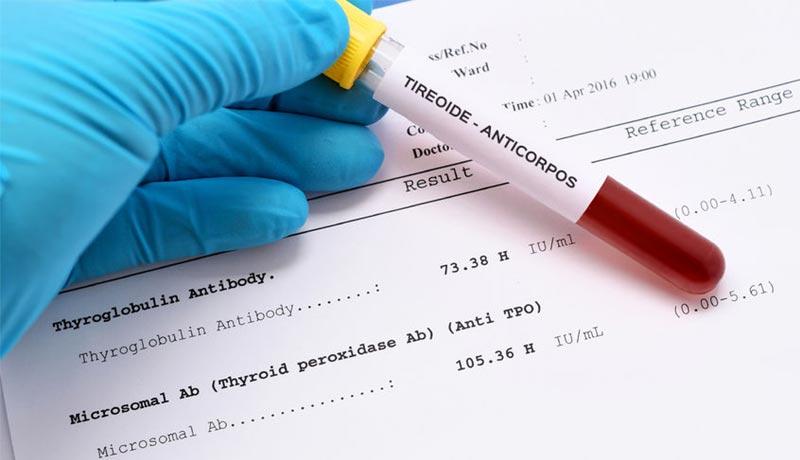 Anticuerpos y Tiroides (anti-TPO, TRAb y anti-tg) 1
