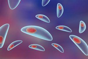 Principais Sintomas da Toxoplasmose