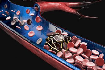 Trombosis Venosa Profunda: Causas, Signos y Tratamiento