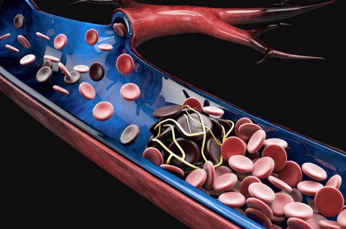 En sangre de la causas de cadera coágulo