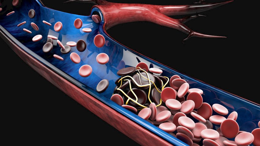 o que causa coágulos sanguíneos nas artérias das pernas