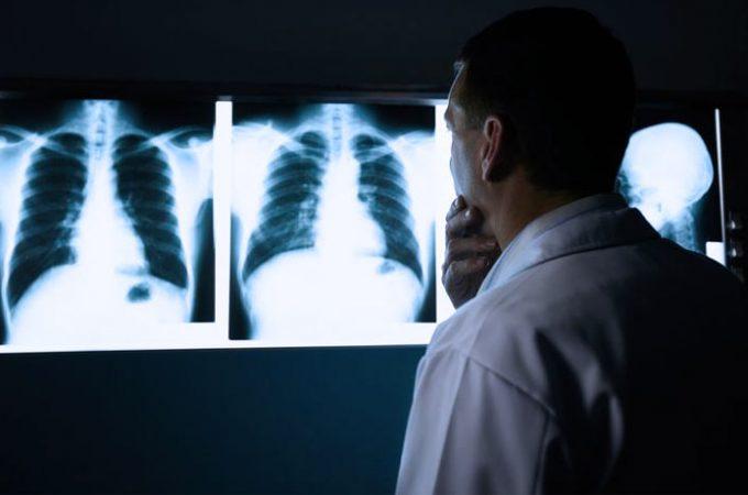 Tuberculose ou pneumonia