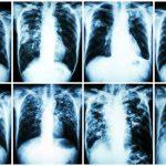 TUBERCULOSE – Causas, Sintomas e Tratamento