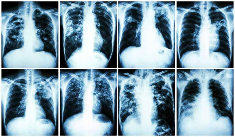 TUBERCULOSIS – Causas, Síntomas y Tratamiento