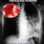 10 SÍNTOMAS DE TUBERCULOSIS