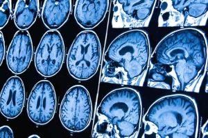 5 síntomas de tumor cerebral