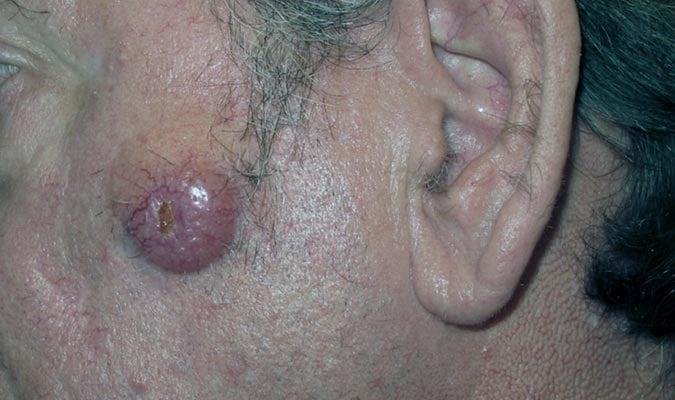 Poliomavírus de células de Merkel (MCV)