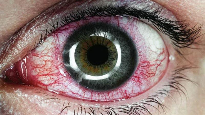 Uveíte anterior - vermelhidão ao redor da íris e lacrimejamento