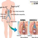 VARICOCELE – Sintomas, Causas e Tratamento