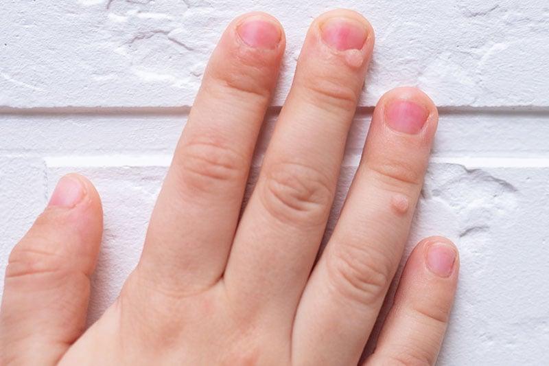 Verruga nos dedos
