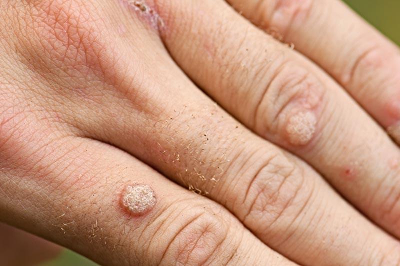 Verruga comum nos dedos da mão
