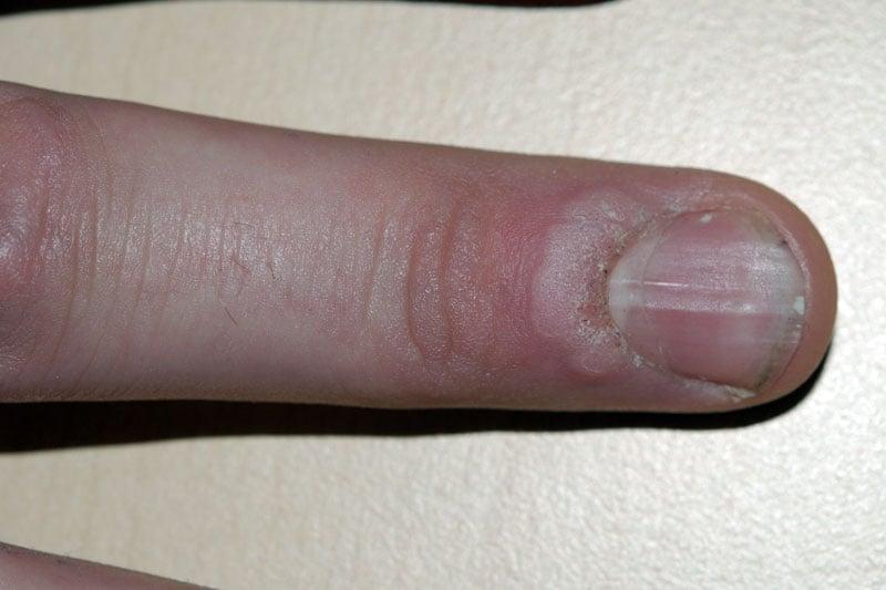 Verruga comum na cutícula
