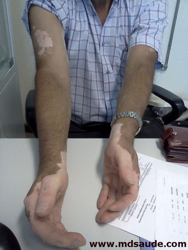 Vitiligo nas mãos e braços
