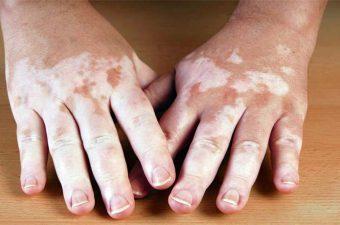 VITÍLIGO – Causas, síntomas y tratamiento