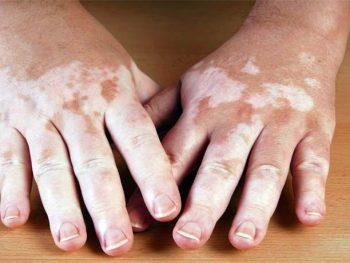 VITILIGO – Causas, Sintomas e Tratamento