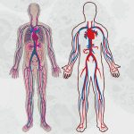 GRANULOMATOSIS DE WEGENER – Granulomatosis con Poliangeítis
