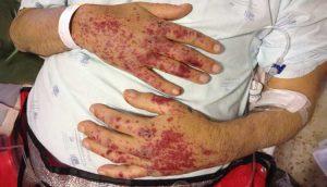 GRANULOMATOSE DE WEGENER – Granulomatose com Poliangiite