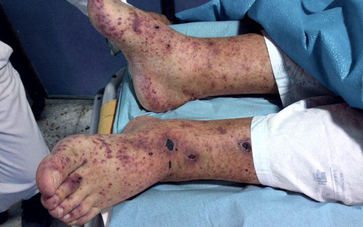 Vasculite - granulomatose de Wegener
